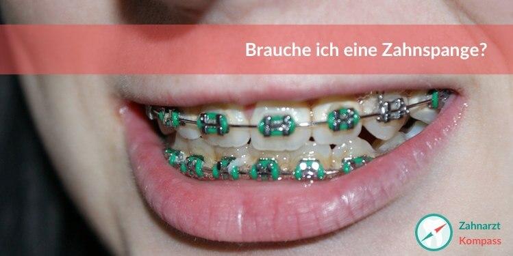 Wann Zahnspange nötig?